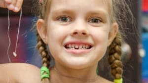 The Best Ways to Pull Baby Teeth| Smile Workshop New Braunfels