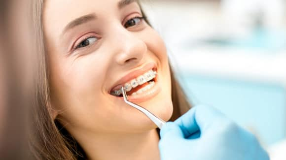Important Things to Know Before Getting Braces | Smile Workshop Denton