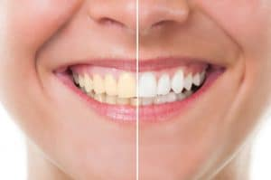 Reverse Coffee Stains With Teeth Whitening | Smile Workshop Amarillo